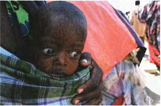 Somali'deki Açlığın Perde Arkası