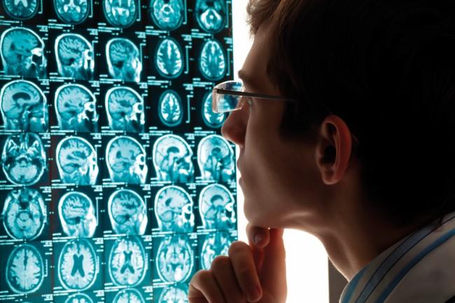 Beynimiz Ve Yapay Sinir Ağları